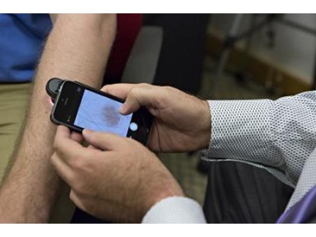 DermoScreen, une application pour détecter les cancers de la peau