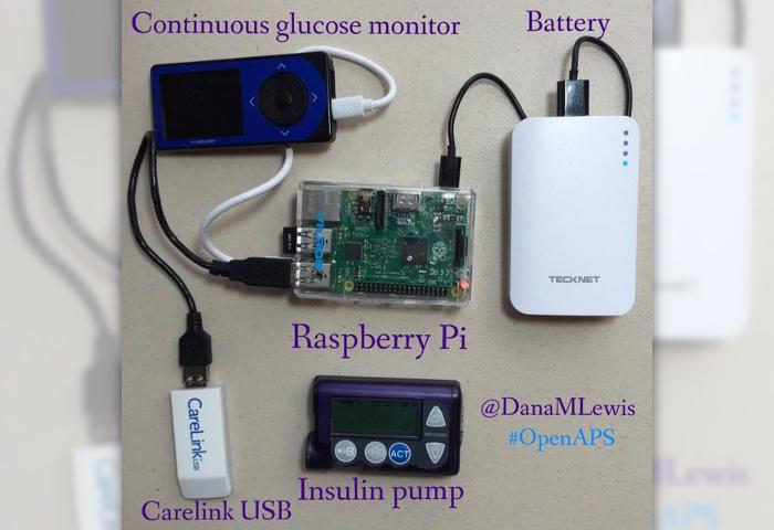 DIY Pancreas