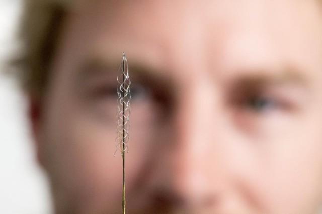Implant prothèse