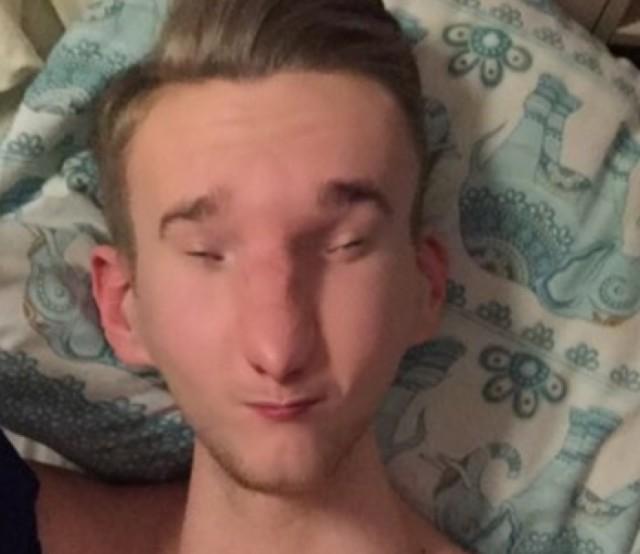 Traumatisme Snapchat