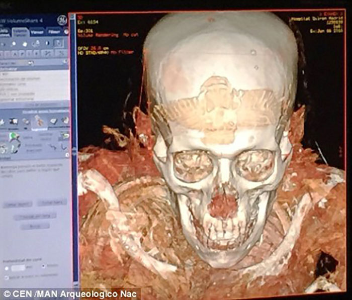 Scan 3D Momie : image 3