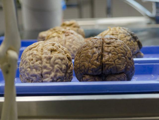 Cerveaux artificiels