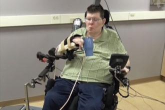 Implant paralysie