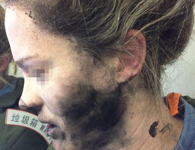 Une Australie brûlée par l'explosion en vol de ses écouteurs !