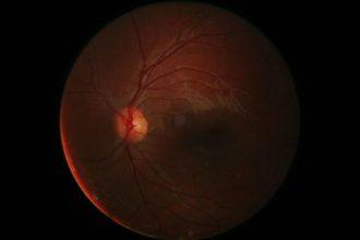 La rétine de l'œil humain