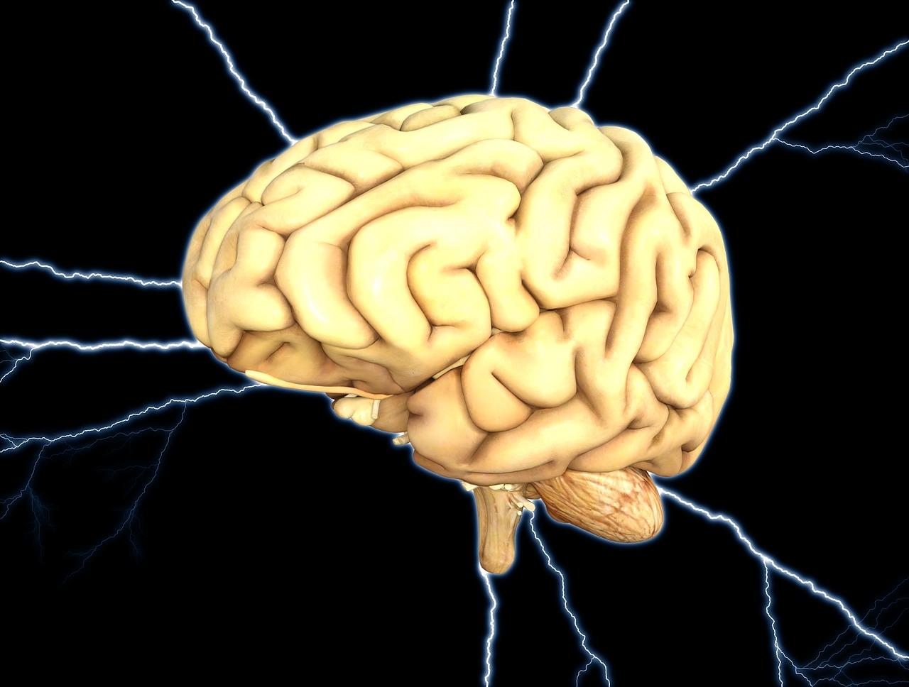 L'image d'un cerveau